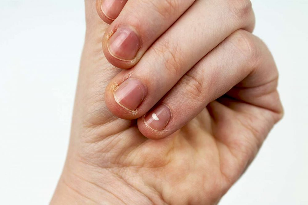Infecciones por hongos en la piel y las uñas