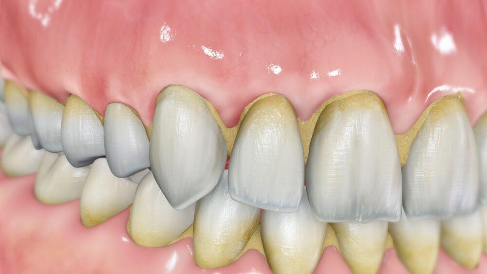 ¿Cómo afecta el sarro a los dientes y las encías?
