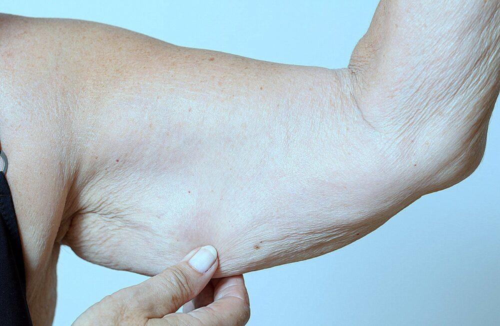 Cómo luchar contra la Sarcopenia (pérdida de músculo debido al envejecimiento)