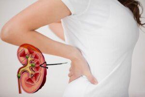 8 remedios naturales para combatir los cálculos renales en casa