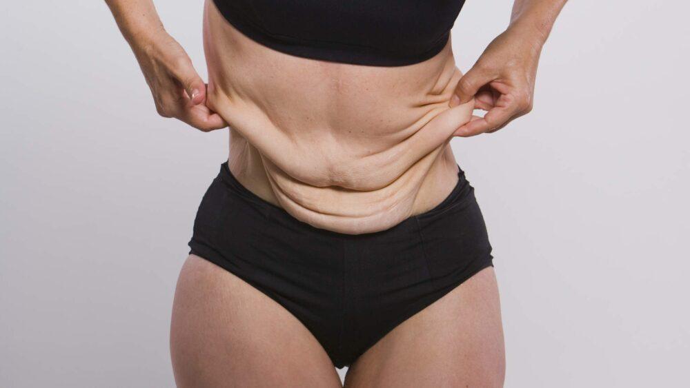 Cómo tensar la piel floja después de perder peso