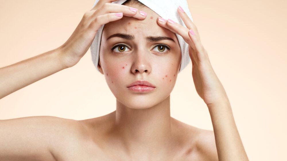 El acné es una señal de estrés