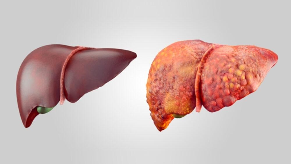 Hígado graso: Qué es y cómo deshacerse de él