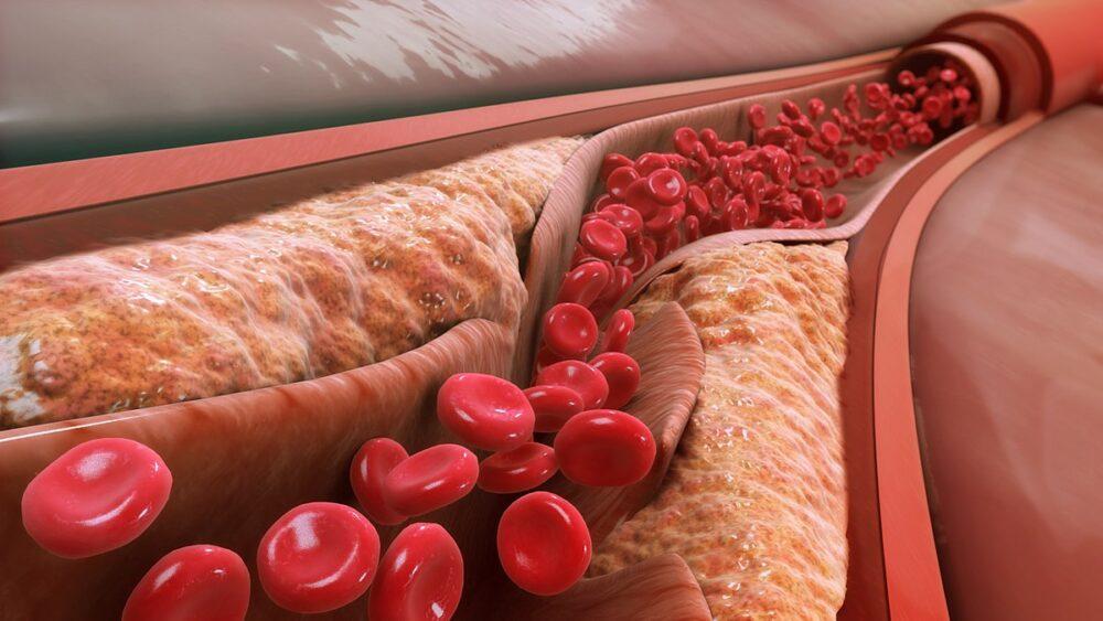 Por qué el colesterol alimenticio no importa (para la mayoría de las personas)