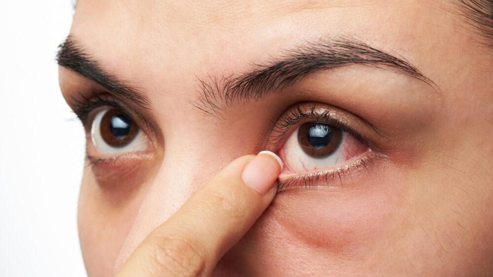 Ojos secos por falta de vitamina A