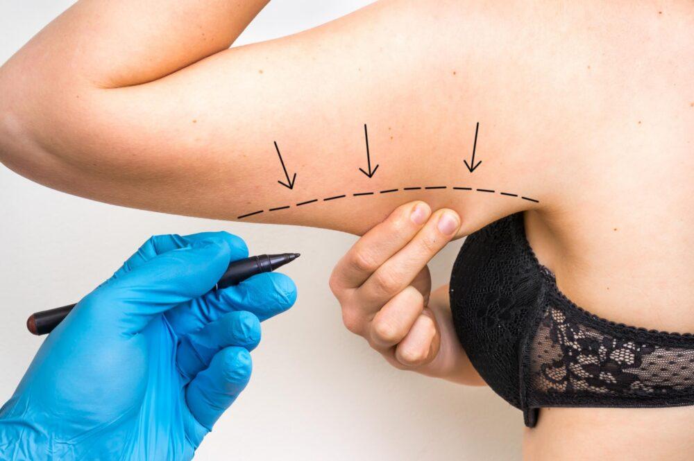 Tratamientos médicos para la piel floja